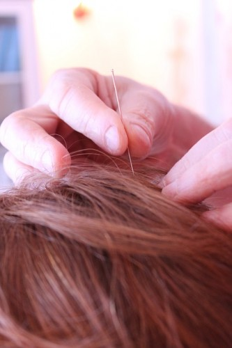 Acupuncture Needles Qualities And Options