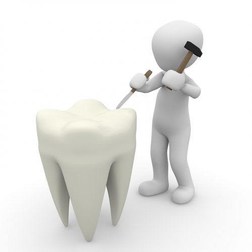 Finding A Good Dentist Rochedale South