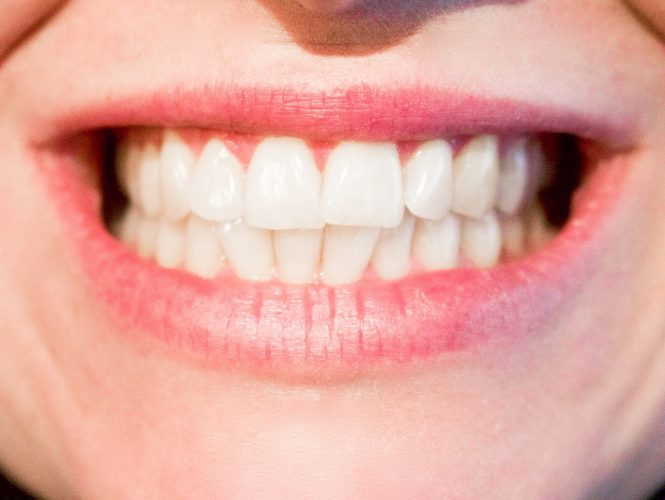 Tips For Straighter Teeth