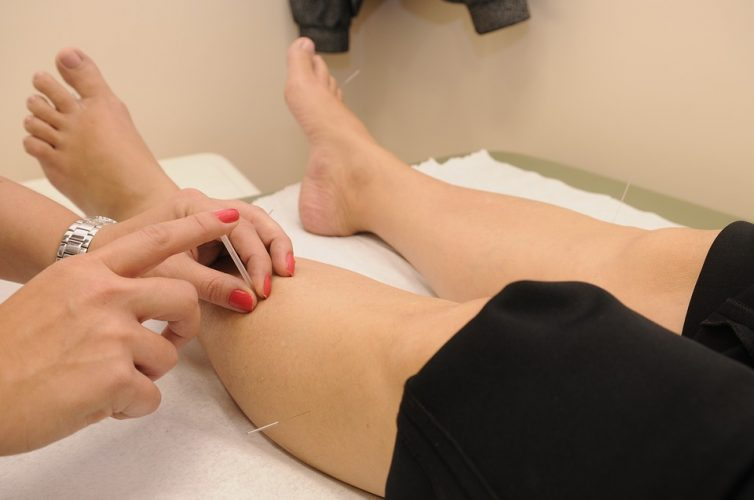 Acupuncture For Full Body Healing And Balance